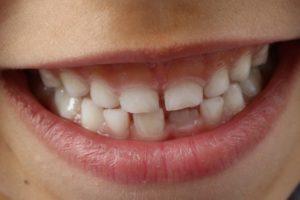 Dr Yann Guez, dentiste à Montpellier, sur l'anatomie dentaire